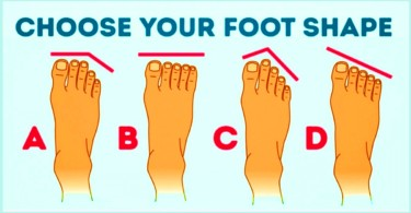 Types_of_Toes
